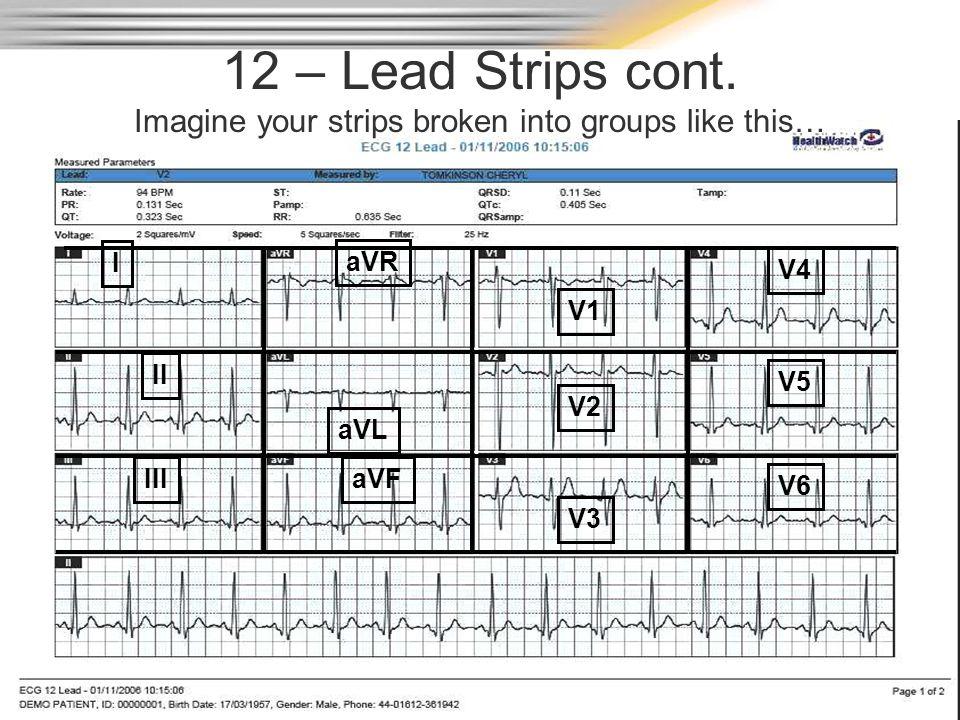 12 – Lead Strips cont. Imagine your strips broken into groups like this… I II III aVL aVF V1 V2 V3 V4 V5 V6 aVR