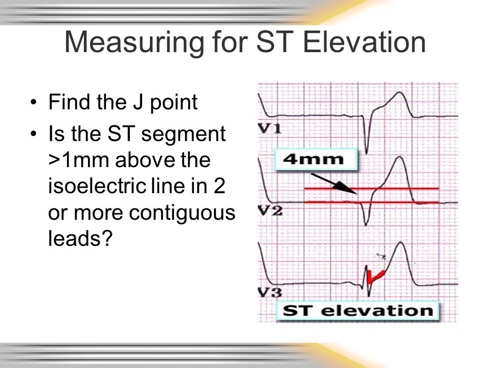 Measuring for ST Elevation Find the J point Is the ST segment >1mm above the isoelectric line in 2 or more contiguous leads?