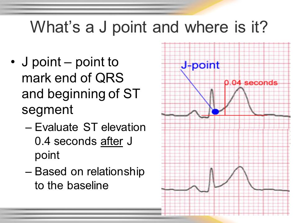 Intervals and Complexes PR interval – atrial and nodal activity –Includes atrial depolarization & delay in the AV node (PR segment) QRS complex –Corresponds to the patient's palpated pulse –Large in size due to reflection of ventricular activity