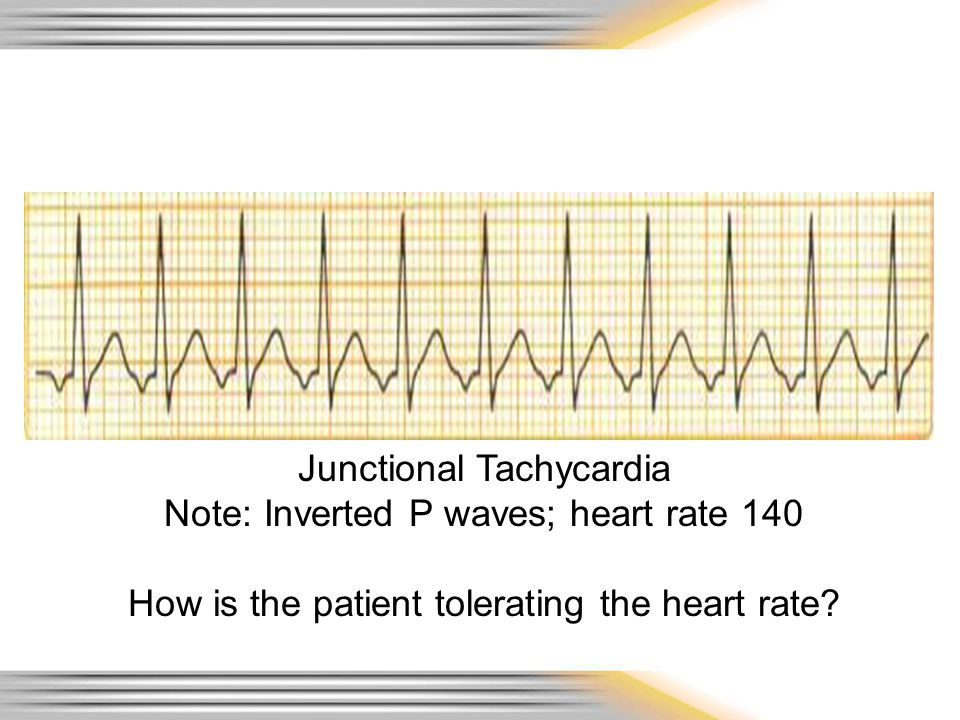 Junctional Tachycardia Note: Inverted P waves; heart rate 140 How is the patient tolerating the heart rate?
