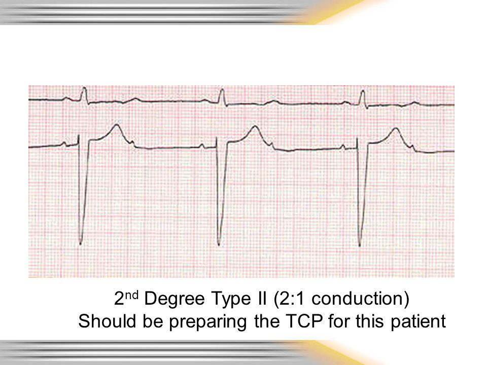 2 nd Degree Type II (2:1 conduction) Should be preparing the TCP for this patient