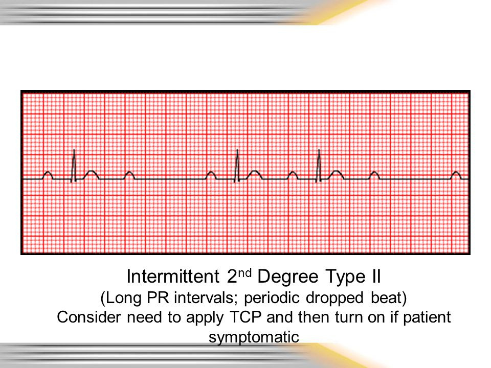 Intermittent 2 nd Degree Type II (Long PR intervals; periodic dropped beat) Consider need to apply TCP and then turn on if patient symptomatic