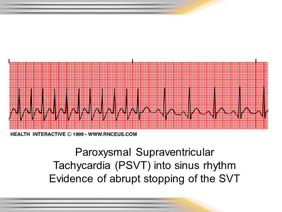 Paroxysmal Supraventricular Tachycardia (PSVT) into sinus rhythm Evidence of abrupt stopping of the SVT
