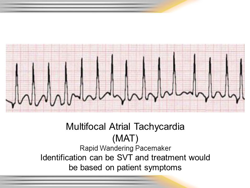 Multifocal Atrial Tachycardia (MAT) Rapid Wandering Pacemaker Identification can be SVT and treatment would be based on patient symptoms