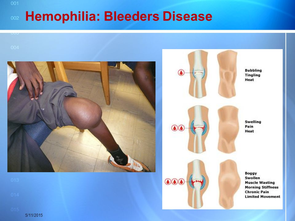 Hemophilia: Bleeders Disease 5/11/2015