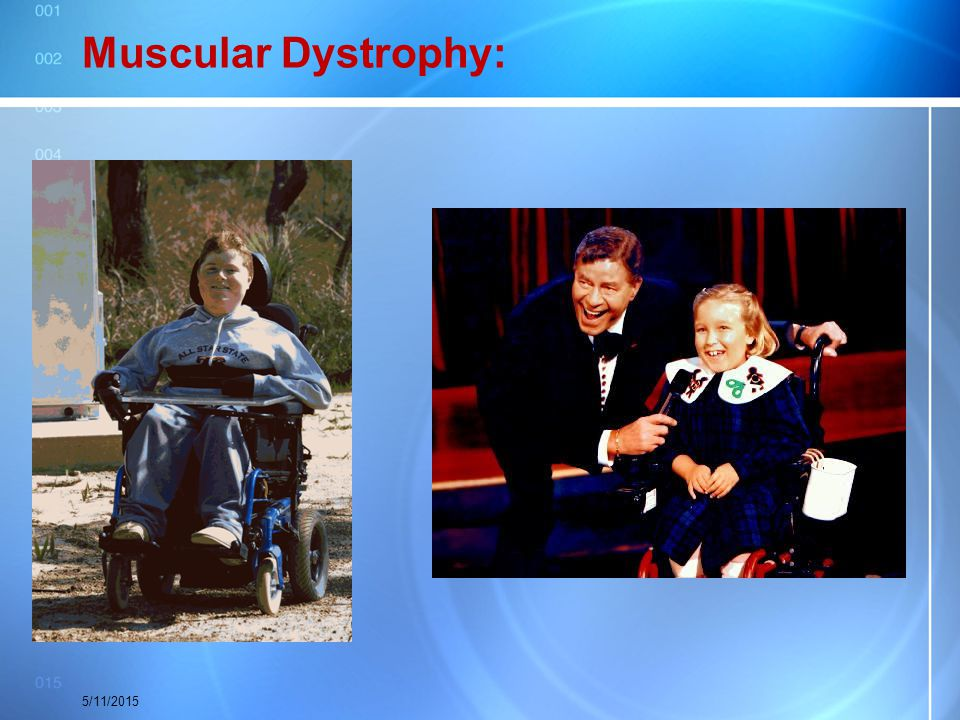 Muscular Dystrophy: 5/11/2015