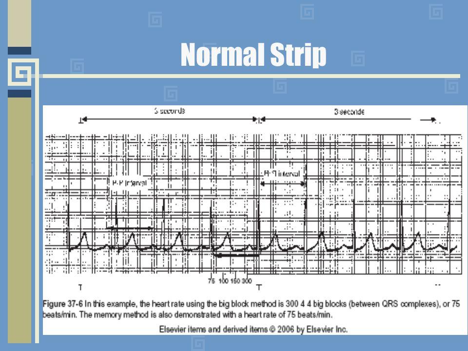 Normal Strip