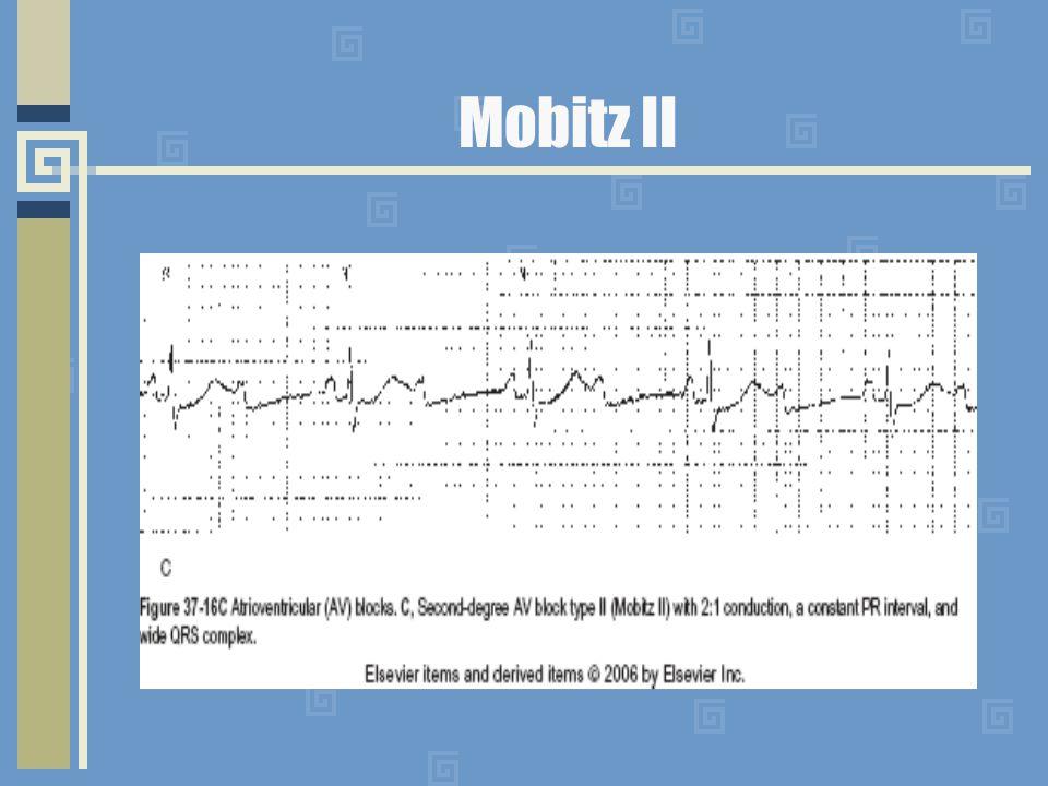 Mobitz II