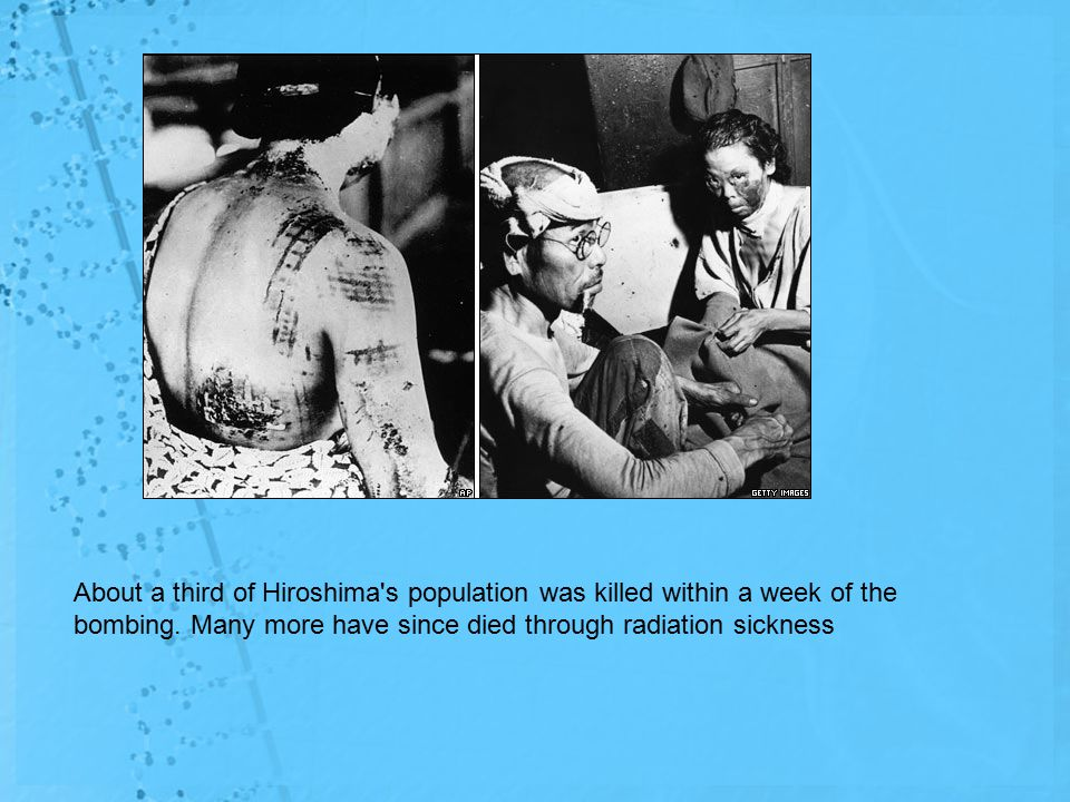 About a third of Hiroshima s population was killed within a week of the bombing.