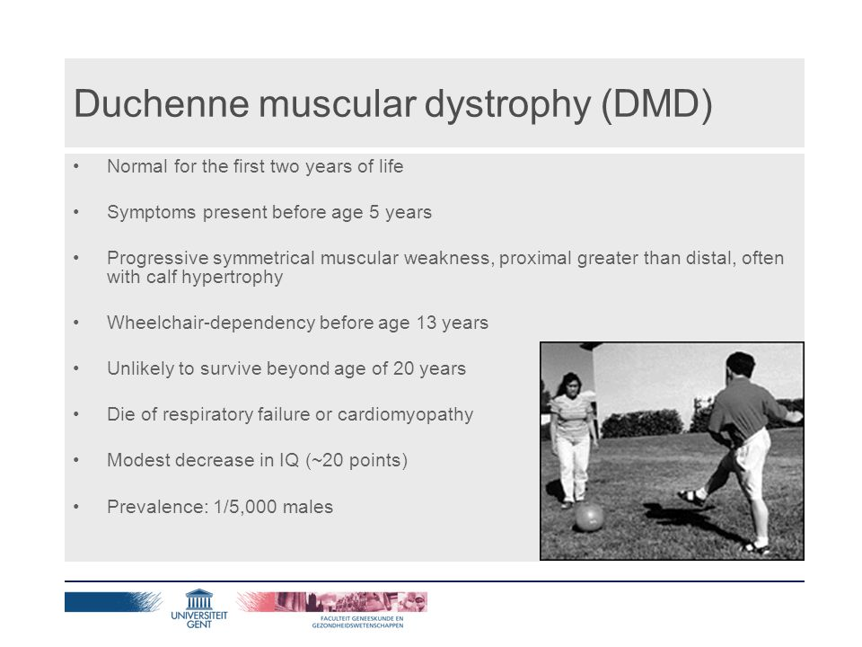 Becker muscular dystrophy (BMD) Progressive symmetrical muscle weakness and atrophy, proximal greater than distal, often with calf hypertrophy (weakness of quadriceps femoris may be the only sign) Activity-induced cramping (present in some individuals) Flexion contractures of the elbows (if present, late in the course) Wheelchair dependency (if present, after age 16 years) Preservation of neck flexor muscle strength (differentiates BMD from DMD) Prevalence: 1/18,000 males