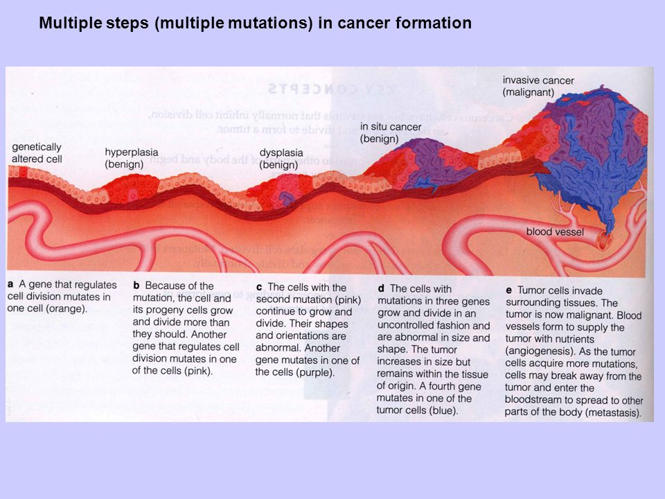 About mosaic analysis The vast majority of cancers are caused by somatic mutations.