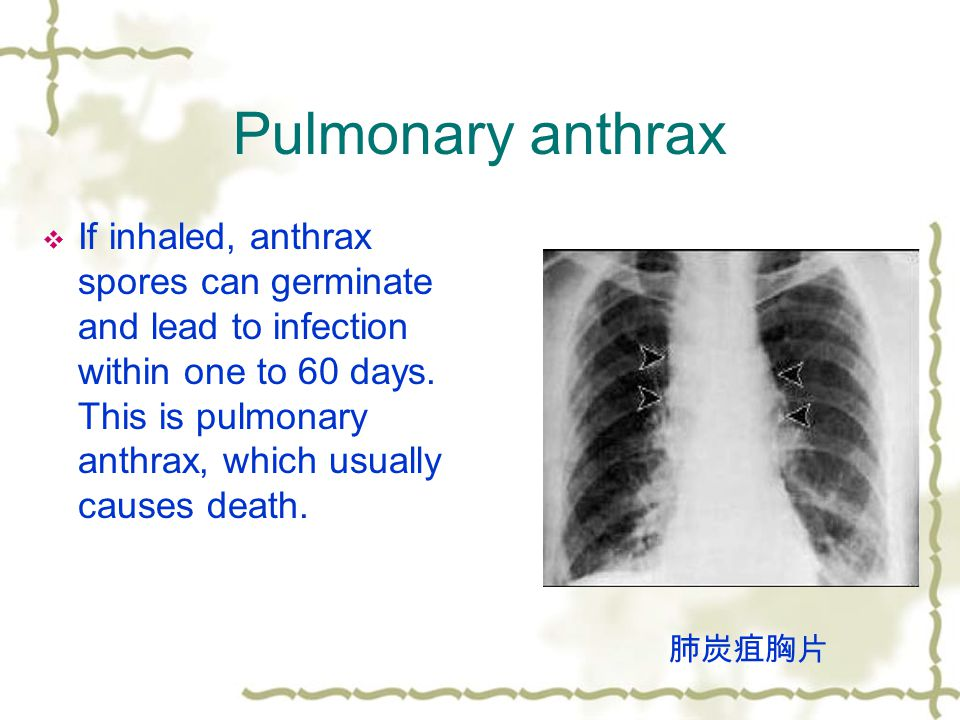 Pulmonary anthrax  If inhaled, anthrax spores can germinate and lead to infection within one to 60 days.