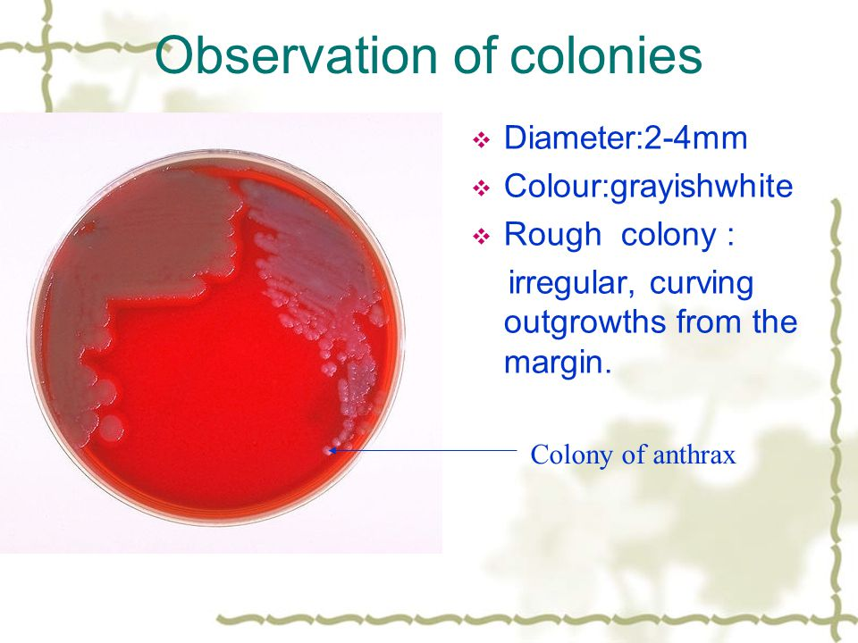 Observation of colonies  Diameter:2-4mm  Colour:grayishwhite  Rough colony : irregular, curving outgrowths from the margin.