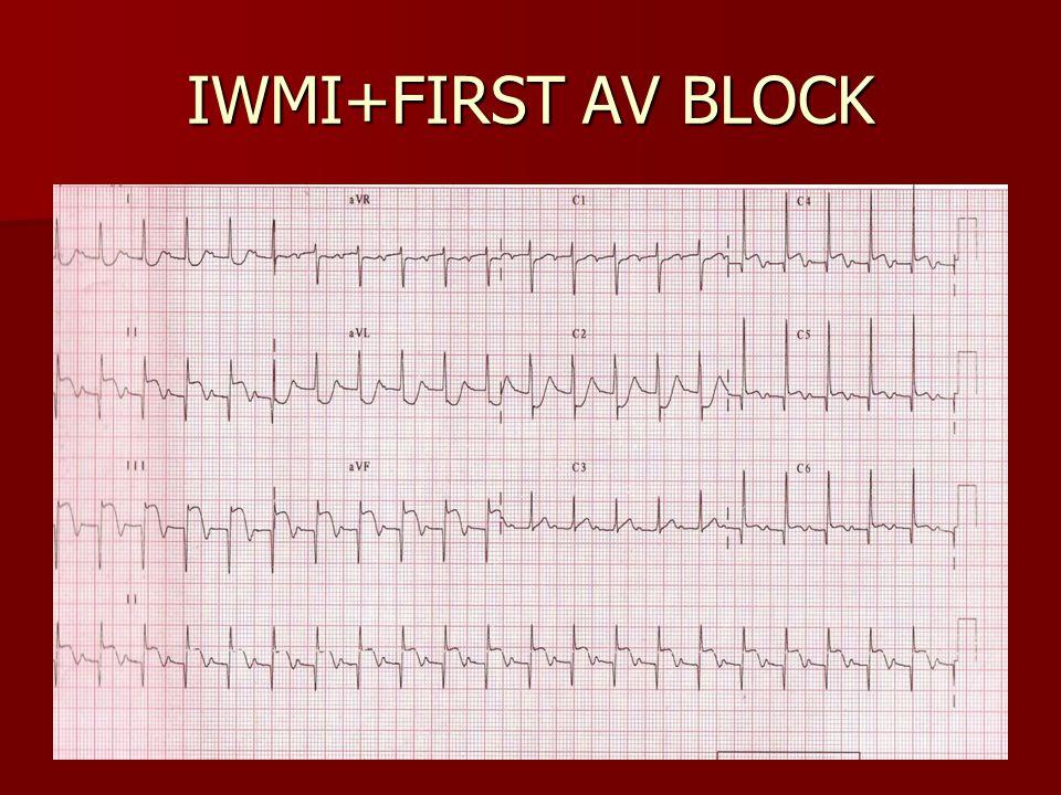 IWMI+FIRST AV BLOCK