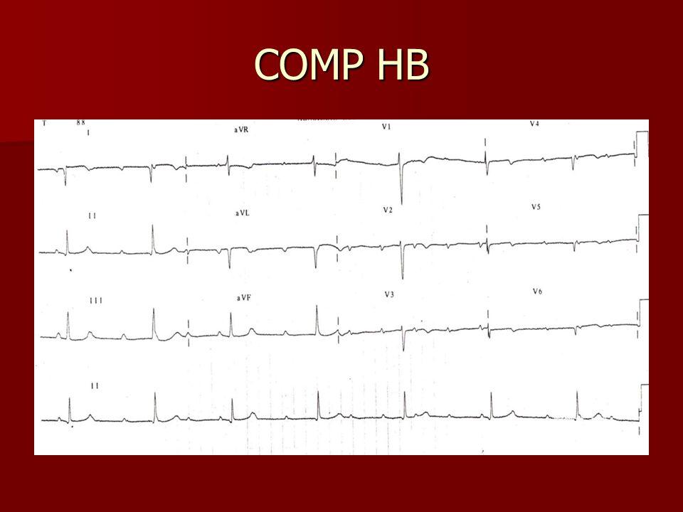 COMP HB