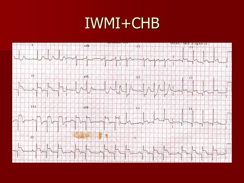 IWMI+CHB