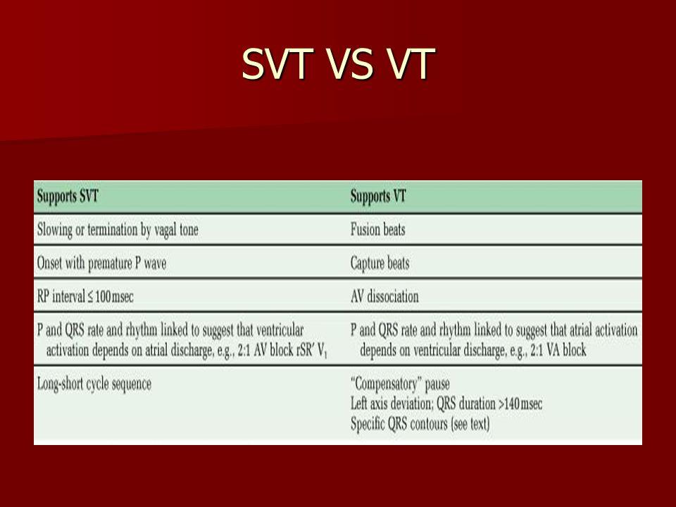 SVT VS VT