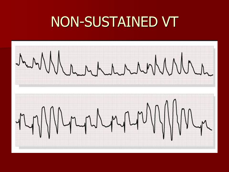 NON-SUSTAINED VT