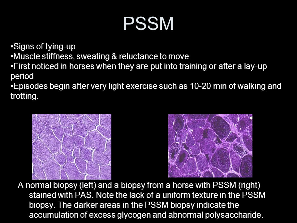 PSSM A normal biopsy (left) and a biopsy from a horse with PSSM (right) stained with PAS.