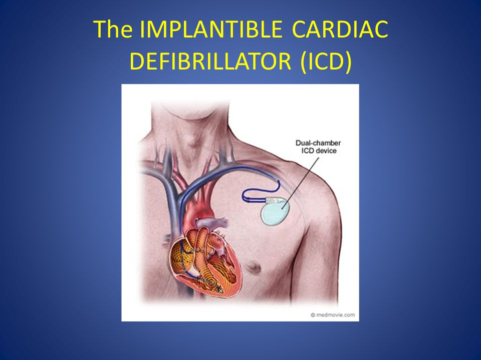 The IMPLANTIBLE CARDIAC DEFIBRILLATOR (ICD)