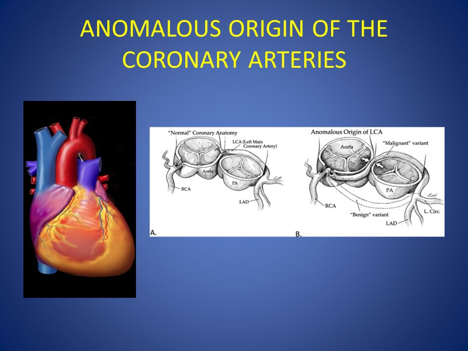 ANOMALOUS ORIGIN OF THE CORONARY ARTERIES