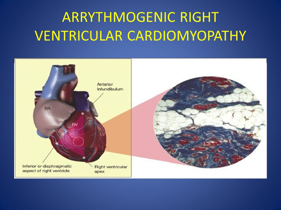 ARRYTHMOGENIC RIGHT VENTRICULAR CARDIOMYOPATHY