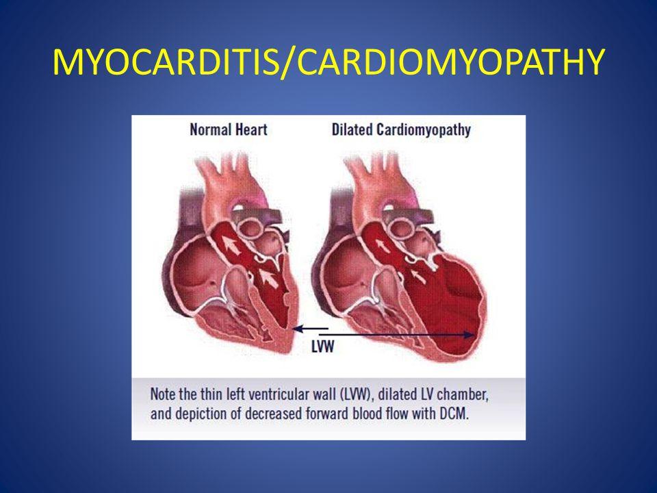 MYOCARDITIS/CARDIOMYOPATHY