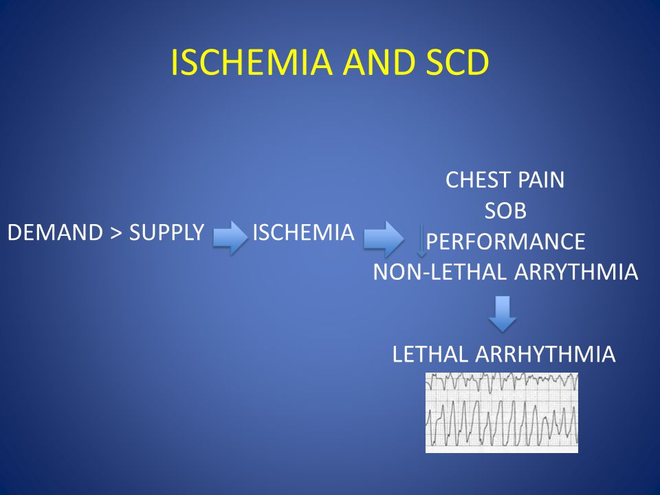 ISCHEMIA AND SCD DEMAND > SUPPLYISCHEMIA CHEST PAIN SOB PERFORMANCE NON-LETHAL ARRYTHMIA LETHAL ARRHYTHMIA