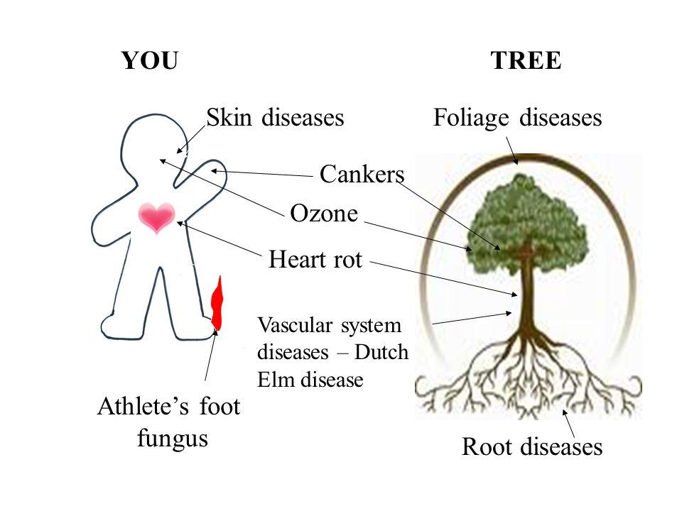 TREEYOU Athlete's foot fungus Skin diseases Ozone Heart rot Cankers Foliage diseases Vascular system diseases – Dutch Elm disease Root diseases