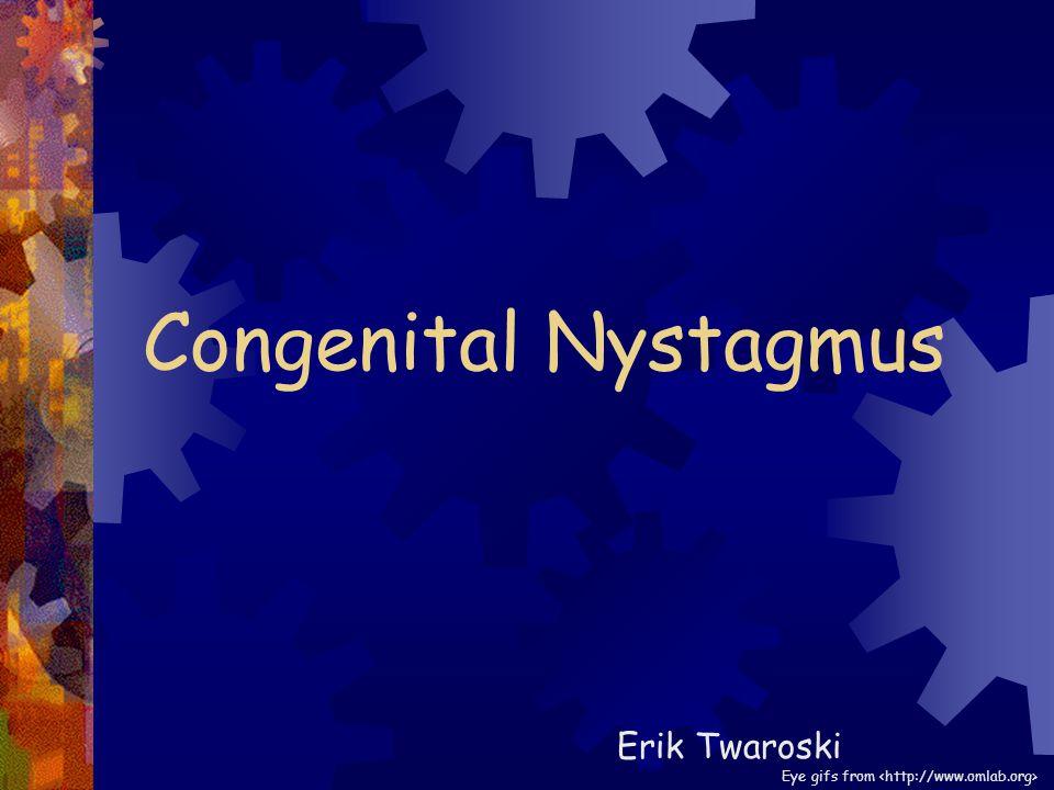 Congenital Nystagmus Erik Twaroski Eye gifs from