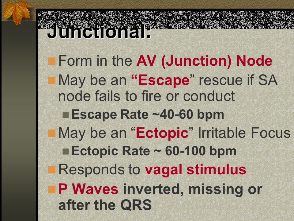 "Junctional: Form in the AV (Junction) Node May be an ""Escape"" rescue if SA node fails to fire or conduct Escape Rate ~40-60 bpm May be an ""Ectopic"" Ir"