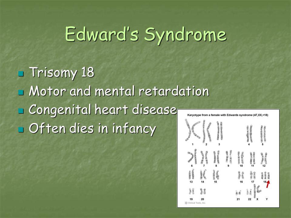 Edward's Syndrome Trisomy 18 Trisomy 18 Motor and mental retardation Motor and mental retardation Congenital heart disease Congenital heart disease Of
