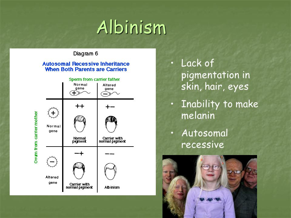 Albinism Lack of pigmentation in skin, hair, eyes Inability to make melanin Autosomal recessive