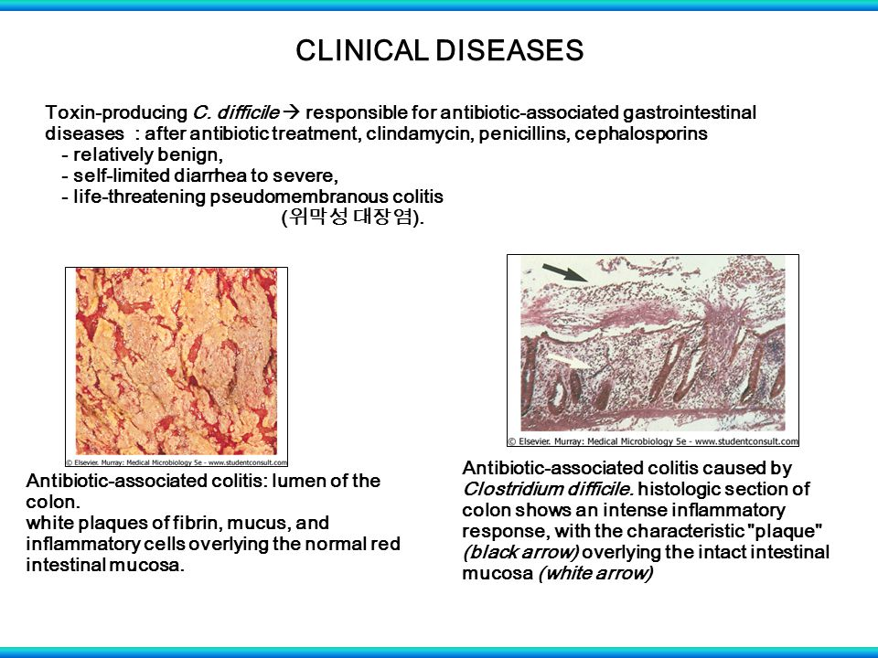 CLINICAL DISEASES Toxin-producing C.