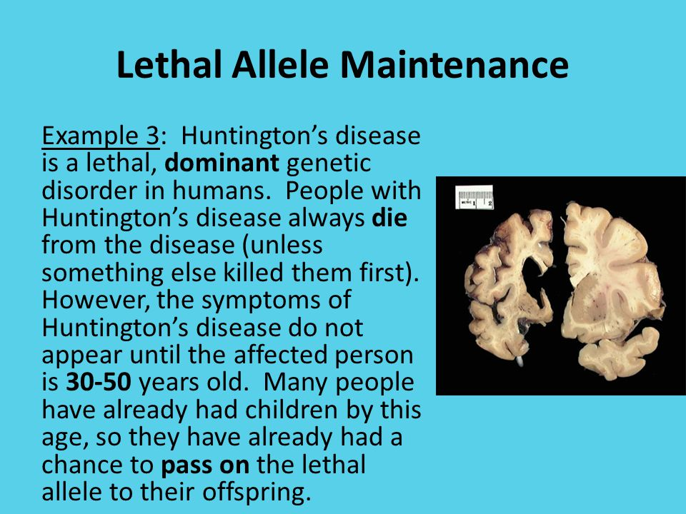 Lethal Allele Maintenance Example 3: Huntington's disease is a lethal, dominant genetic disorder in humans.