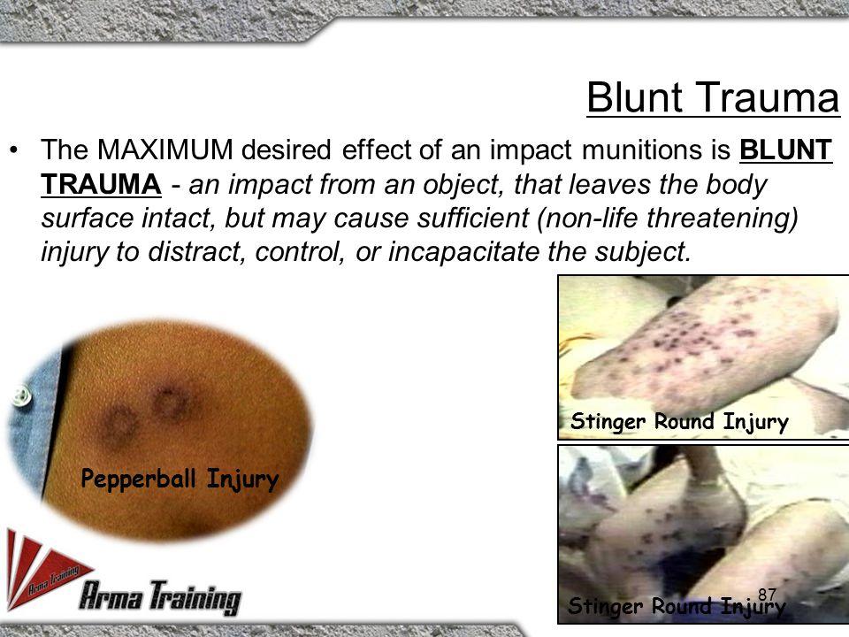 Blunt Trauma vs. Penetration Trauma
