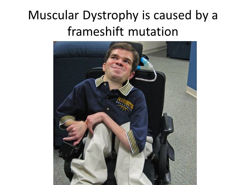 Muscular Dystrophy is caused by a frameshift mutation