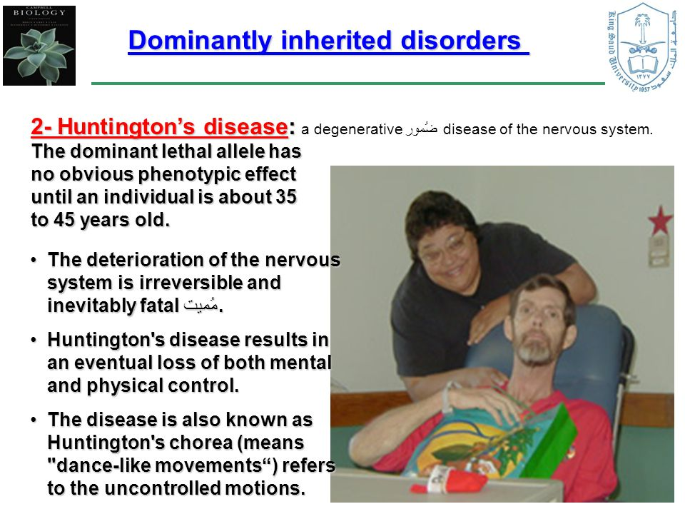 2- Huntington's disease: 2- Huntington's disease: a degenerative ضُمور disease of the nervous system.