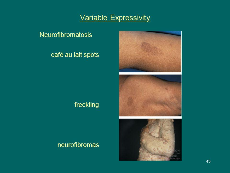 43 Variable Expressivity Neurofibromatosis café au lait spots freckling neurofibromas