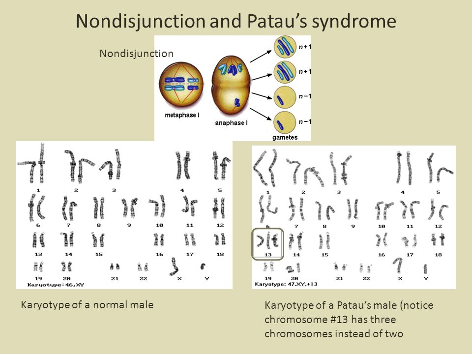 Nondisjunction and Patau's syndrome Nondisjunction Karyotype of a normal male Karyotype of a Patau's male (notice chromosome #13 has three chromosomes instead of two