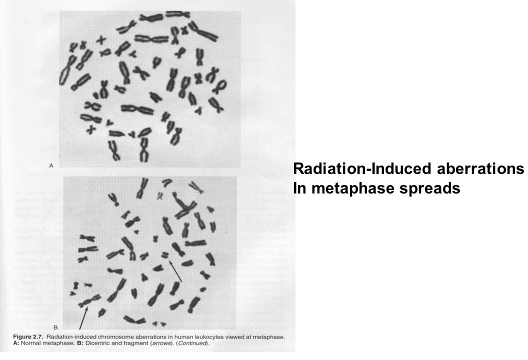 Radiation-Induced aberrations In metaphase spreads