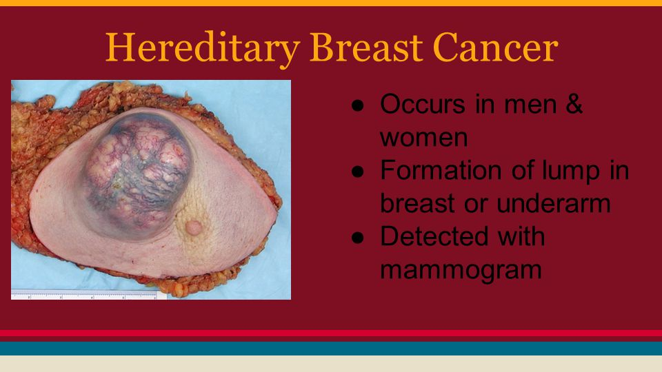 Hereditary Breast Cancer ●Occurs in men & women ●Formation of lump in breast or underarm ●Detected with mammogram