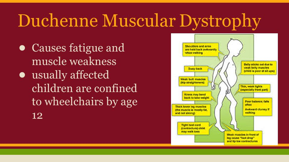 Duchenne Muscular Dystrophy ● Causes fatigue and muscle weakness ● usually affected children are confined to wheelchairs by age 12
