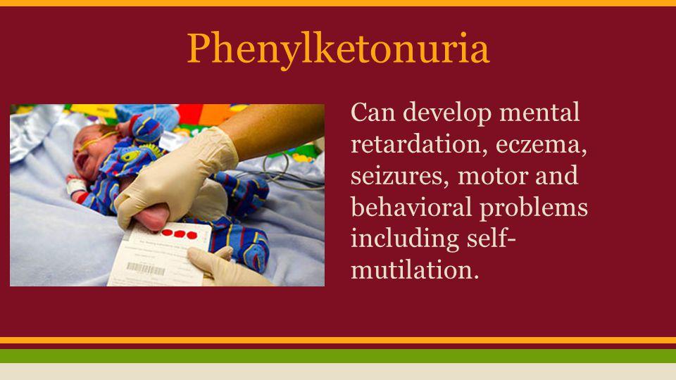 Phenylketonuria Can develop mental retardation, eczema, seizures, motor and behavioral problems including self- mutilation.