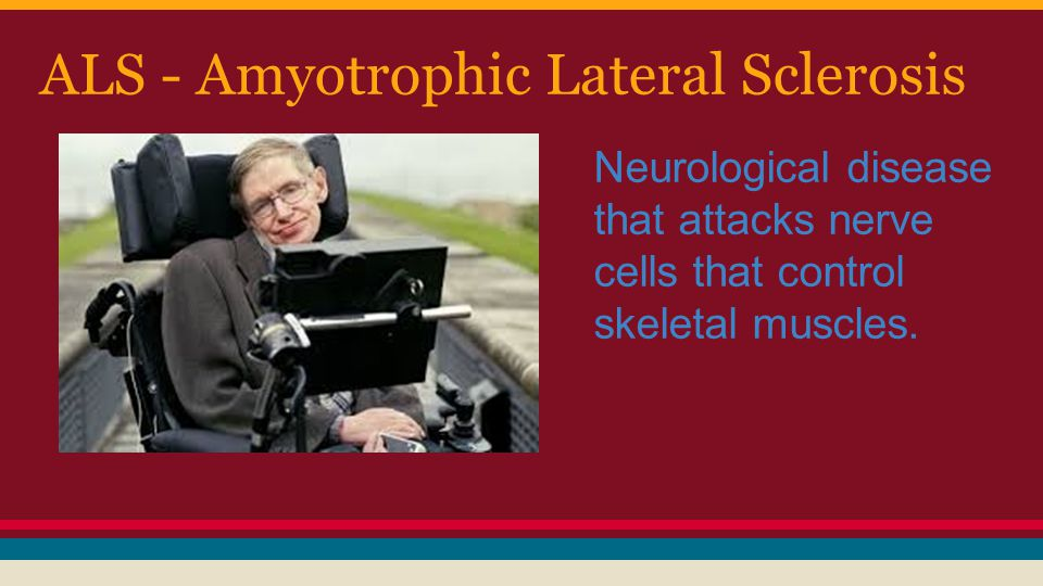 ALS - Amyotrophic Lateral Sclerosis Neurological disease that attacks nerve cells that control skeletal muscles.