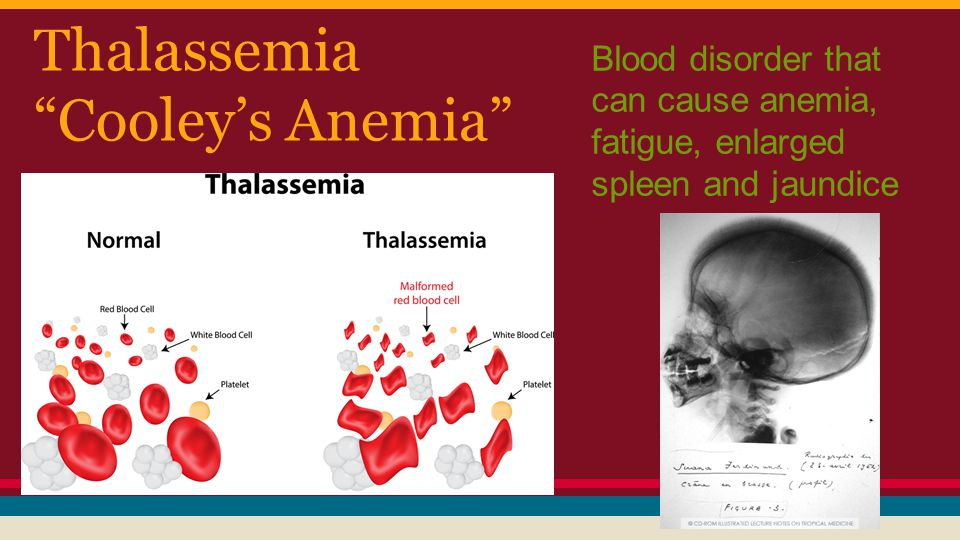 Thalassemia Cooley's Anemia Blood disorder that can cause anemia, fatigue, enlarged spleen and jaundice