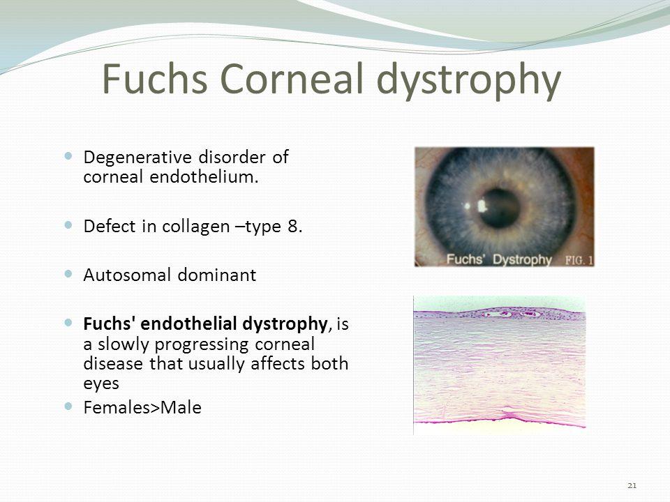 Fuchs Corneal dystrophy Degenerative disorder of corneal endothelium.