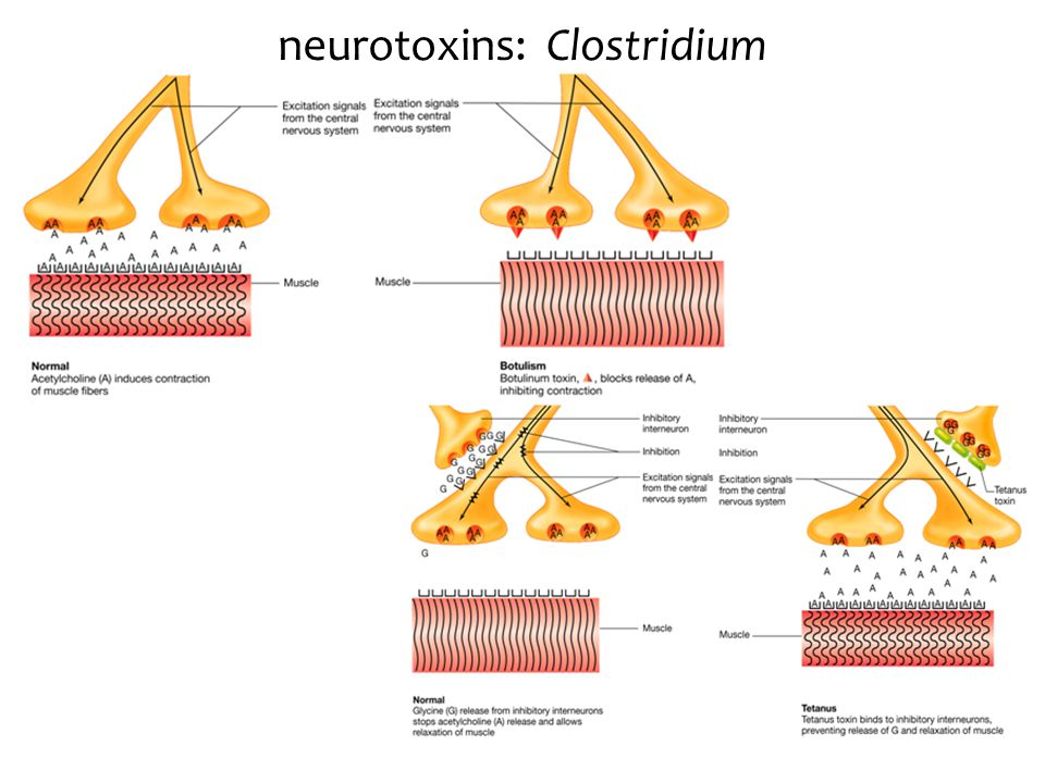 neurotoxins: Clostridium