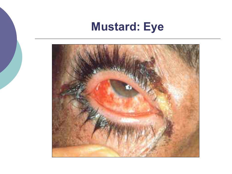 Mustard: Eye