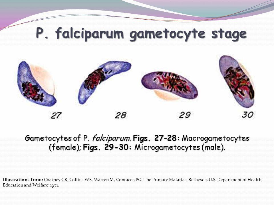 P.falciparum gametocyte stage Gametocytes of P. falciparum.